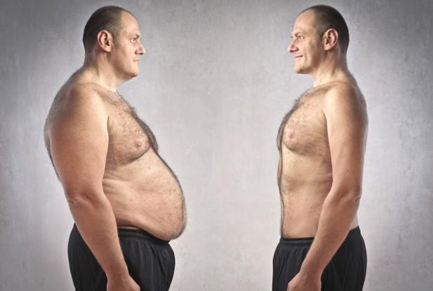 obezite-cerrahisi-blogu